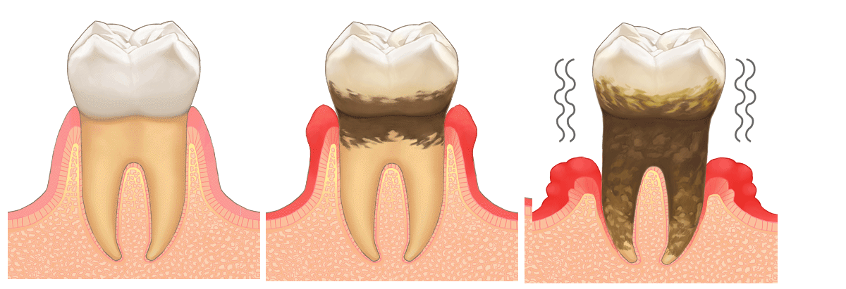 歯周病の進行の流れ