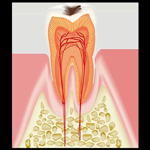 小さなむし歯
