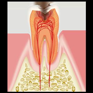 歯髄まで達したむし歯