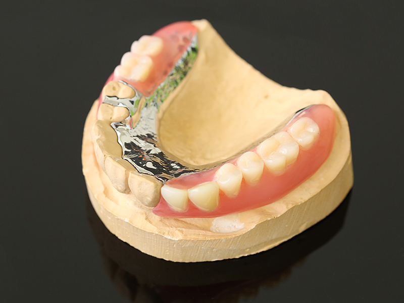 部分入れ歯(部分義歯)