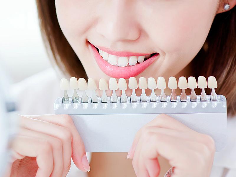 歯の色の診査